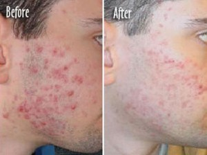 AcneCure-Best Way to Cure Acne