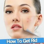 The best ways to How To Get Rid of A Pimple Fast: Best Home Remedies