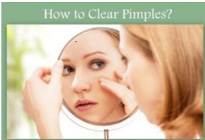 How To Clear Pimple?