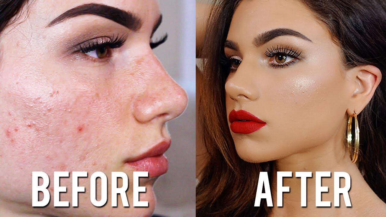 How To Cover Acne With Makeup Without Looking Cakey - Cure ...